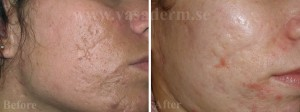 Vasaderm Microdermabrasion before and after - копия