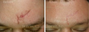 Vasaderm forehead.jpg