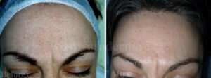 (Svenska) reducera stora porer behandling